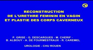 Reconstruction_urethre